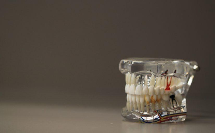 Zły sposób żywienia się to większe deficyty w zębach a także ich brak